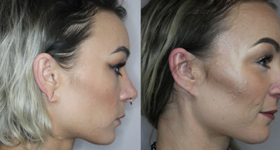 Ear Lobe Repair Before and After