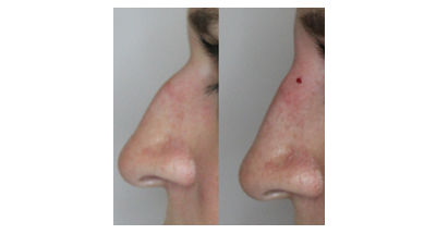 Injection Rhinoplasty Before and After