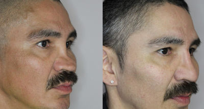 Revision Rhinoplasty Before and After